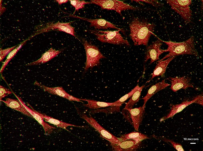 human_bone_cells